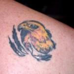 Metode chirurgicale de indepartare a tatuajelor