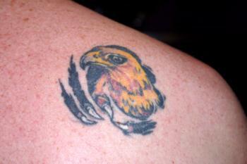 metode indepartare tatuajemetode indepartare tatuaje